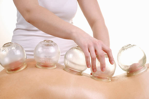 The Benefits And Side Effects Of Cupping Therapy